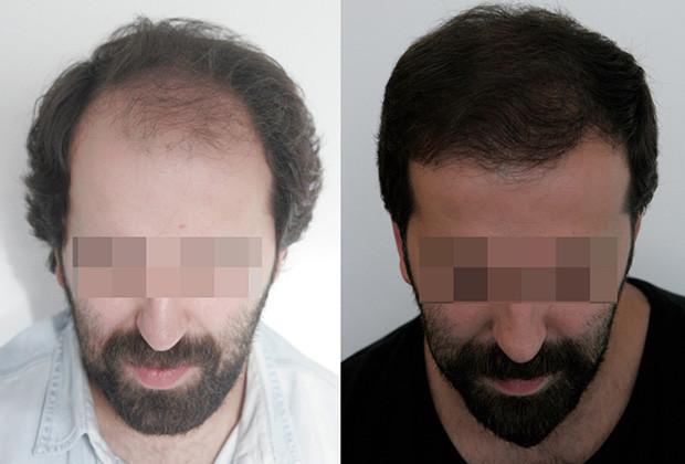 Hair Transplant__02