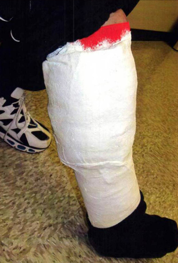 An Amtrak passenger was arrested after cops found 2.2-pounds of cocaine stashed inside a homemade leg cast - which even had fake blood painted on the side.