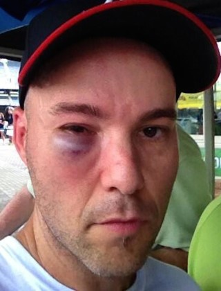 This Is What a Foul Ball Does to Your Face