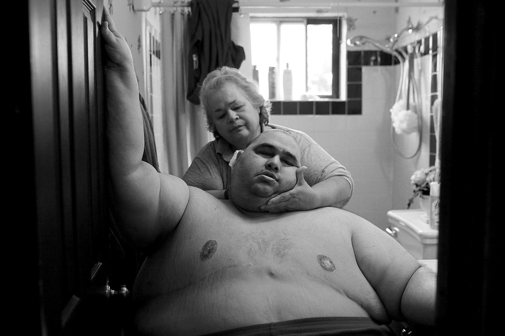 Photos: Life And Death At 500 Pounds