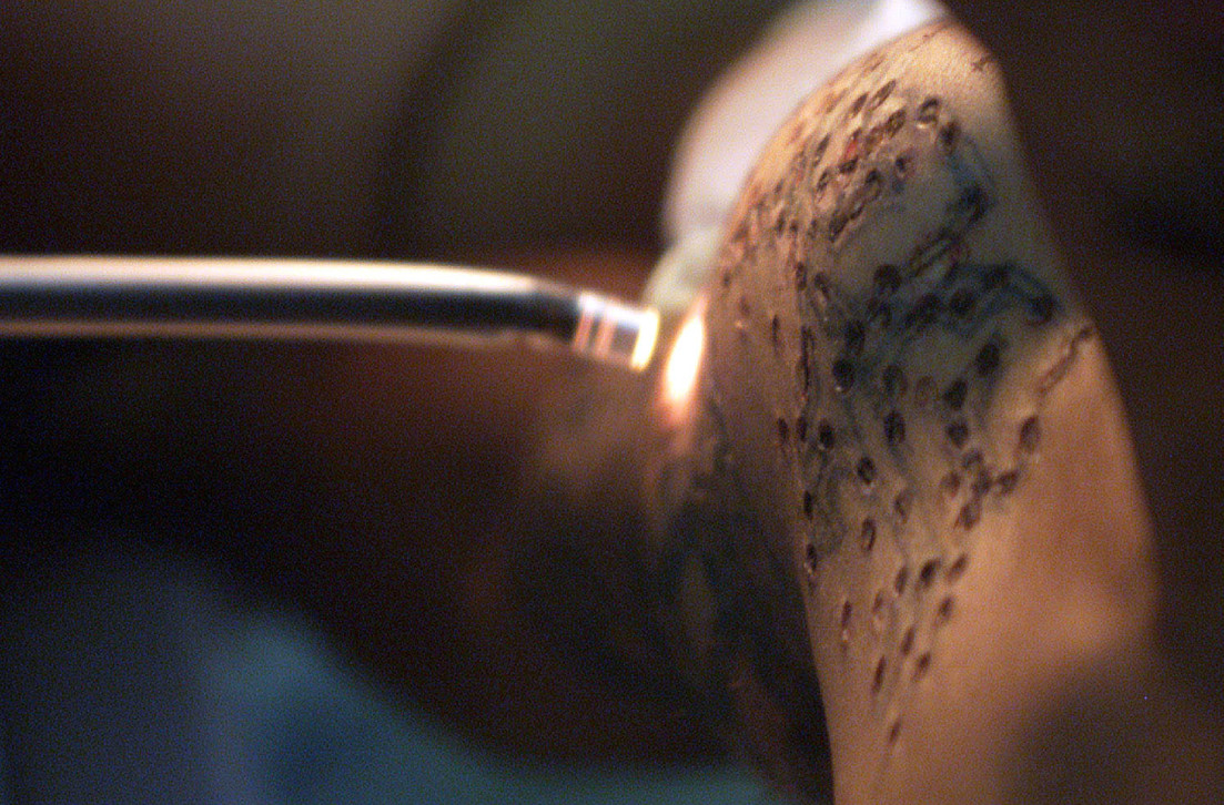 Uae says hello to national service goodbye to tattoos for Tattoo removal service