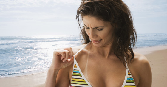Sunlight May Cause Skin Cancer Even Hours After You've Left The Beach