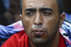 Migrants Sew Their Mouths Shut In Protest