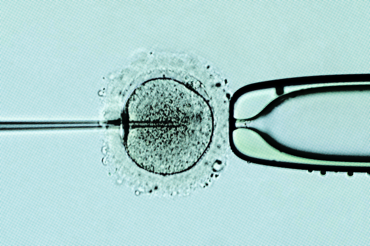 anti in vitro fertilization Amh test or anti mullerian hormone is a new test available for the measurement  of ovarian reserve in women going through ivf.