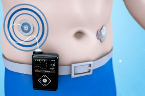 The FDA Approved The World's First Autonomous Insulin Pump
