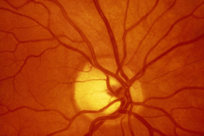 Doctors Can See Into The Human Retina Like Never Before