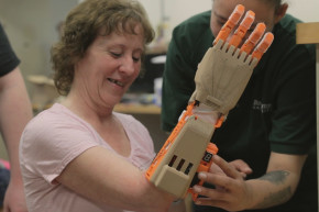 College Students 3D-Printed A Hand For A Campus Worker