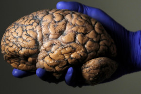 This Giant Brain Collection Could Help Treat Diseases