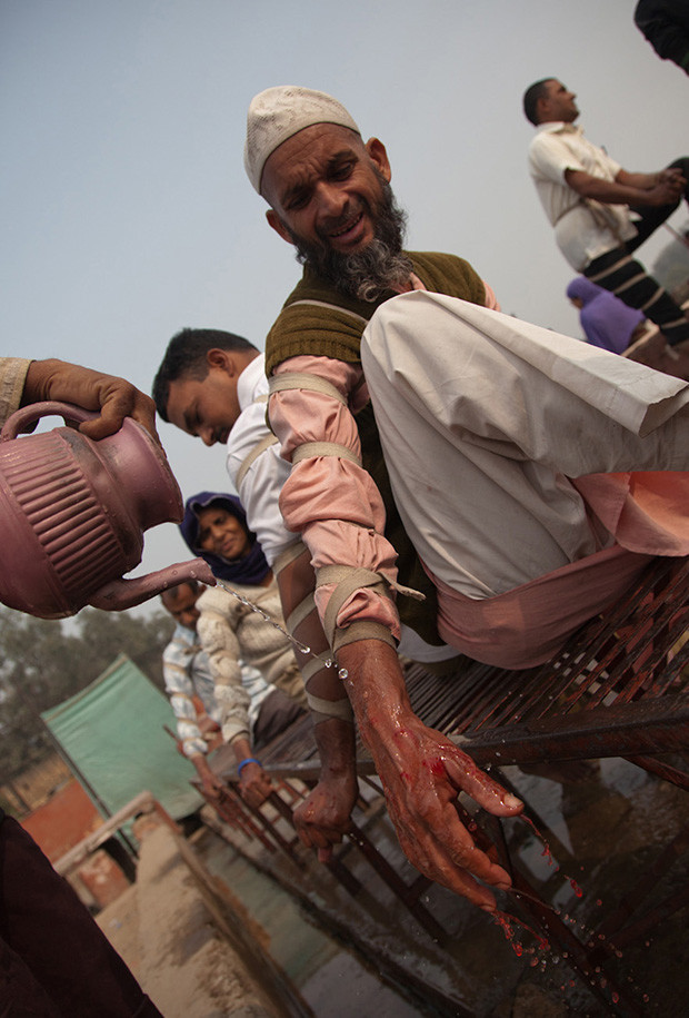 New Delhi: India: 2013     Blood pours freely from a man midway through treatment. Each session can last up to 20 minutes.