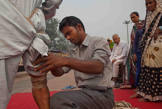 New Delhi: India: 2013     The legs and arms are bound tight above the areas to be cut. Razeen, 28, helps to treat at least 30 patients a day.
