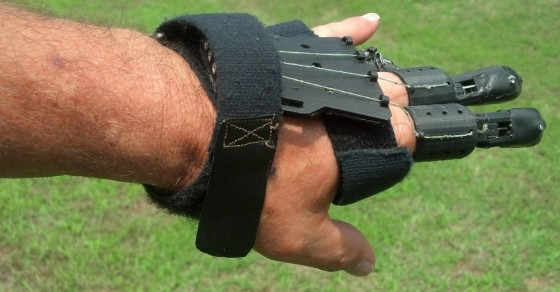 DIY Hero Deserves a Hand for 3D Printing His Own $100 Prosthesis