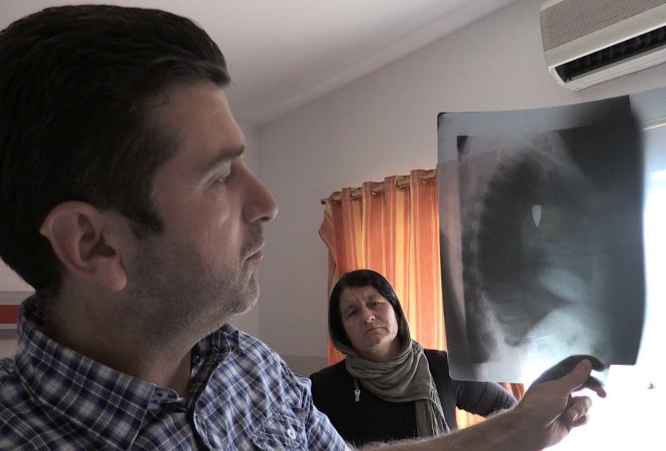 The doctor in Zakho public hospital holds up the X-ray of Said Murat's upper body showing a bullet embedded in his chest.