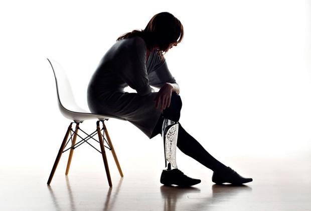 Prosthetic BespokeInnovations