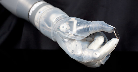 What a $100,000 Bionic Arm Can Do