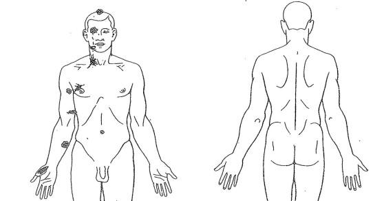Ferguson Erupts as Michael Brown Autopsy Findings Released