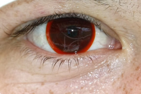 How Contact Lenses Grow Skin Bacteria In Your Eyes