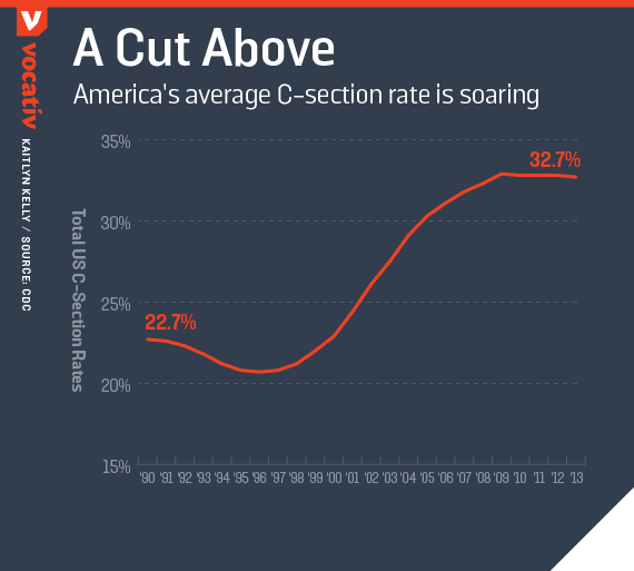 America's average C-section rate is soaring