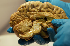 How Neuroscientists Are Learning To Read Our Minds