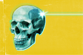 A Clear Skull Implant Could Let Doctors Shoot Lasers Into The Brain
