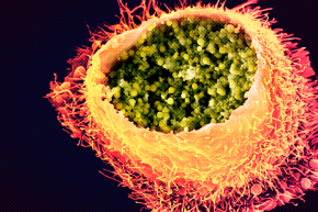 Scientists May Soon Have A Vaccine To Fight Chlamydia