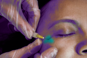 People Are Injecting Carbon Dioxide Around Their Eyes For Beauty
