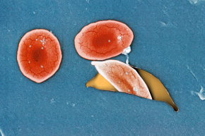 Scientists 'Edit' Cells To Remove Sickle Cell Disease Trait