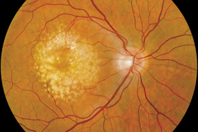 Three Women Blinded In Stem Cell Clinical Trial